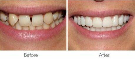 Cosmetic Dentist in El Paso, TX