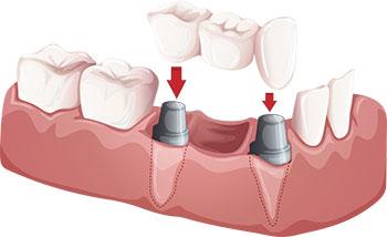 Dental Implants, Crowns & Bridges,  in El Paso, TX