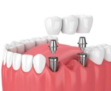 Dental Implant Bridge for multiple missing teeth.
