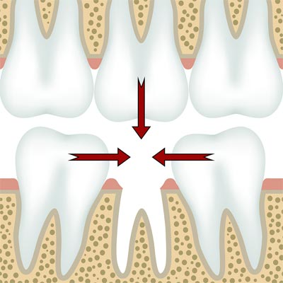 Tooth Extractions in El Paso, TX