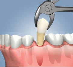 Tooth Extraction in El Paso, TX
