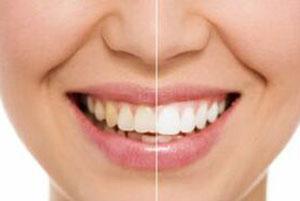 Teeth Whitening in El Paso, TX