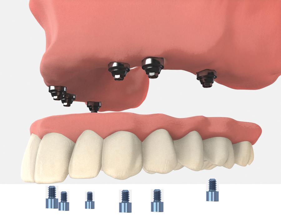 Dentures in El Paso, TX