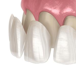 Dental Veneers in El Paso, TX - Pershing Family Dental